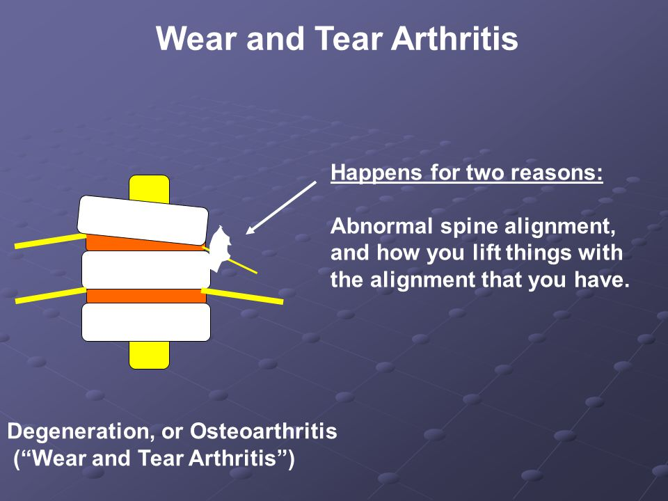 Wear and Tear Arthritis Happens for two reasons: Abnormal spine alignment, and how you lift things with the alignment that you have.