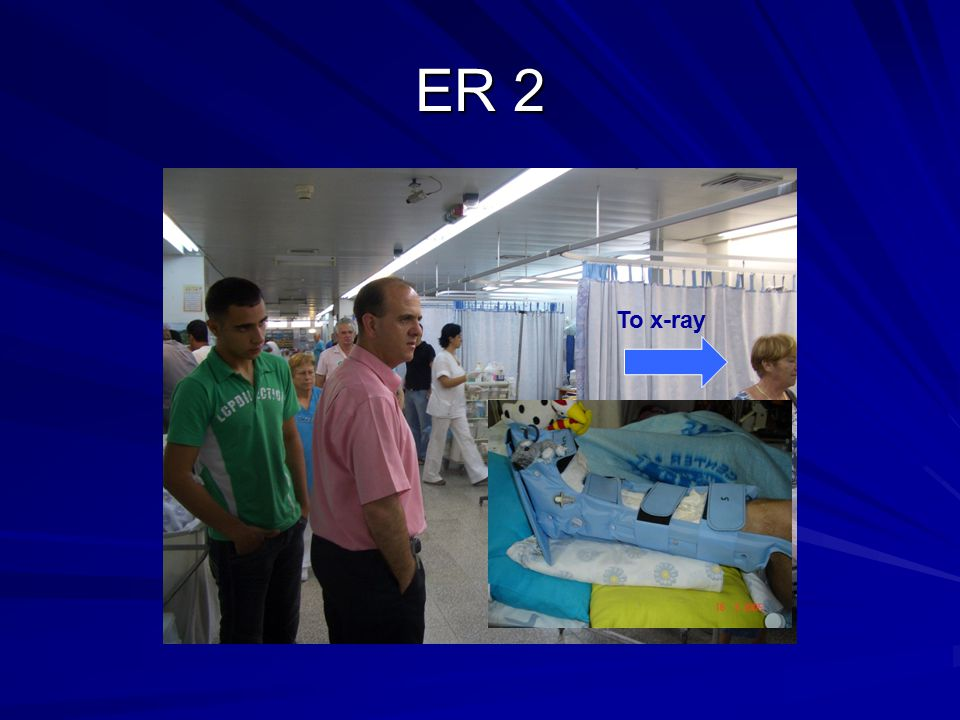 ER 2 To x-ray