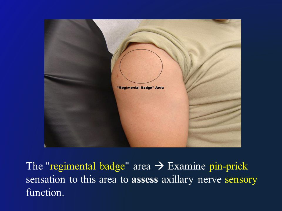 The regimental badge area  Examine pin-prick sensation to this area to assess axillary nerve sensory function.