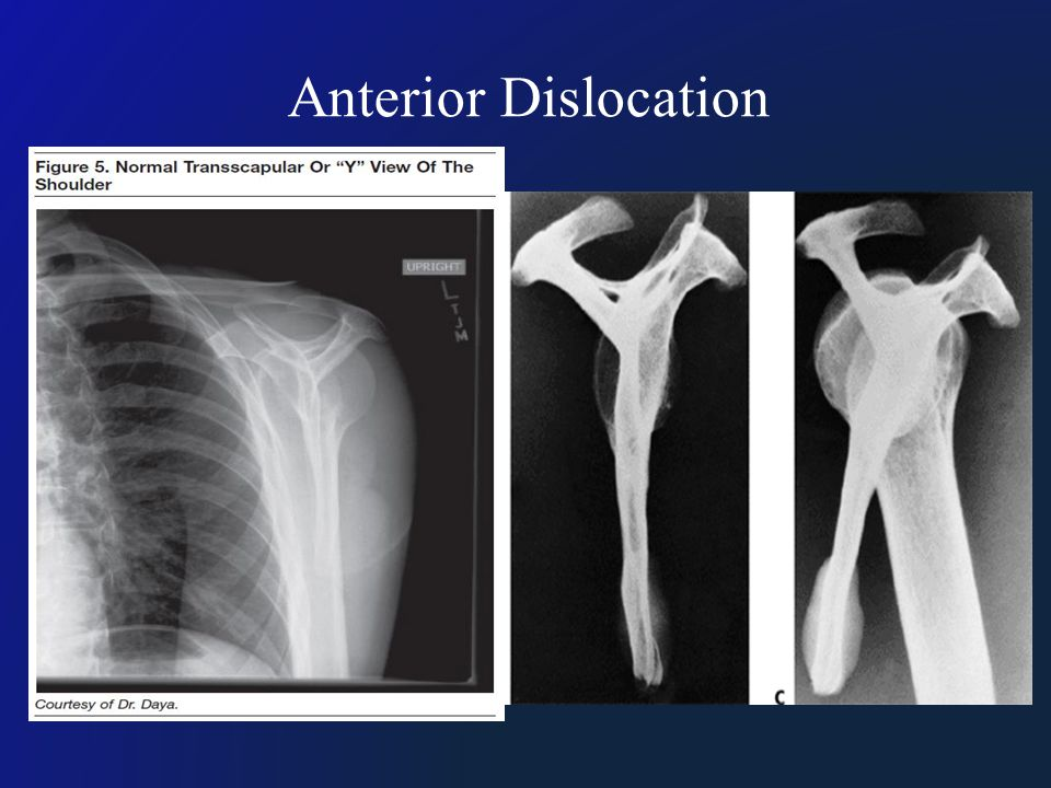 Anterior Dislocation Lateral Scapular View