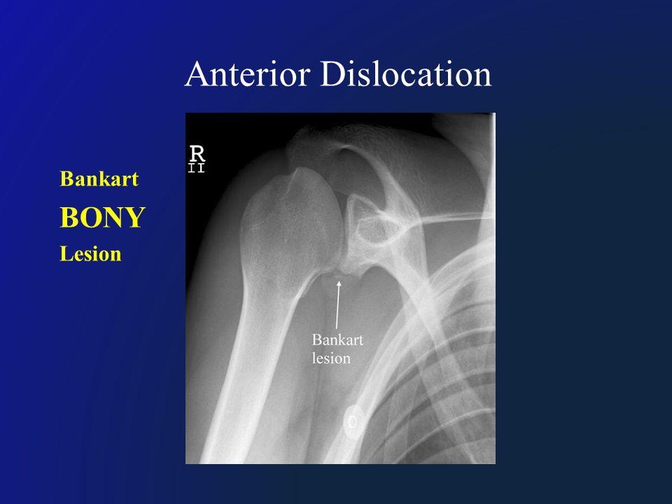 Anterior Dislocation Bankart BONY Lesion