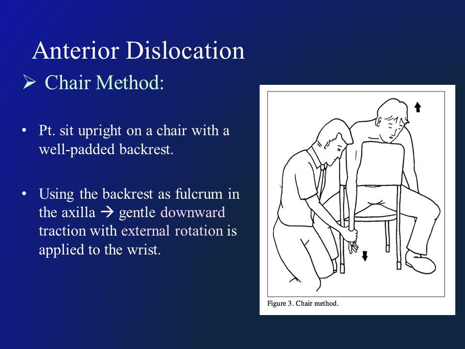 Anterior Dislocation  Chair Method: Pt. sit upright on a chair with a well-padded backrest. Using the backrest as fulcrum in the axilla  gentle down