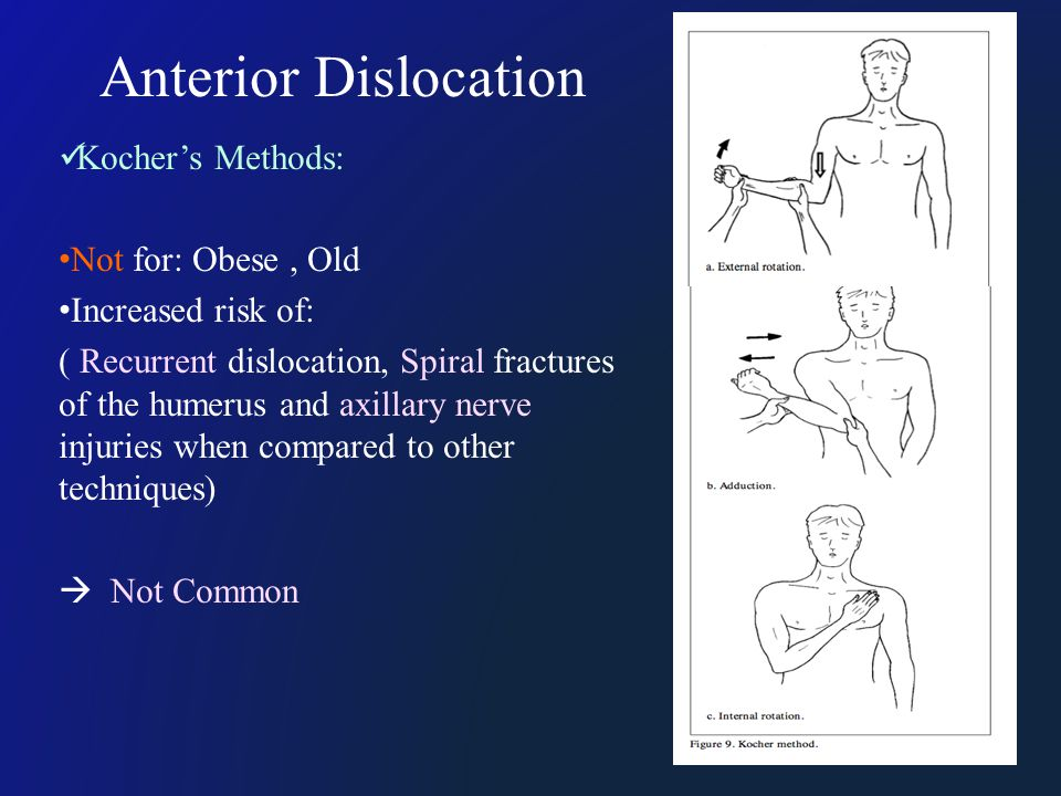 Anterior Dislocation Kocher's Methods: Not for: Obese, Old Increased risk of: ( Recurrent dislocation, Spiral fractures of the humerus and axillary ne