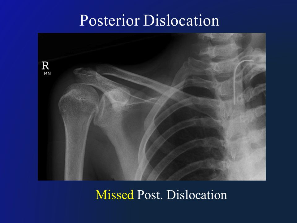 Missed Post. Dislocation