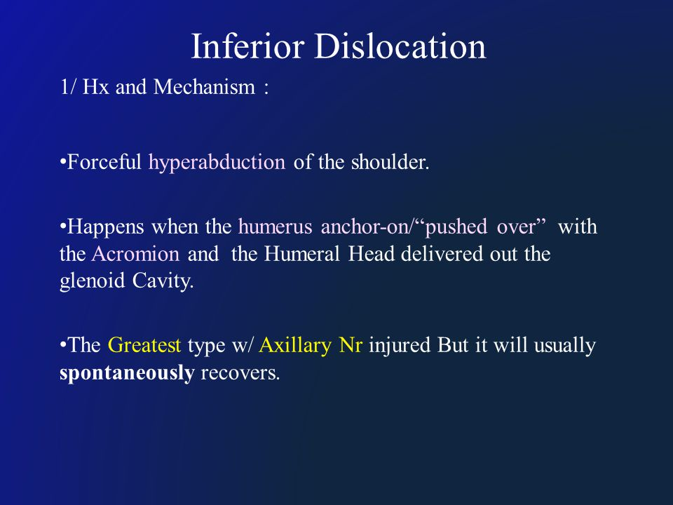 "Inferior Dislocation 1/ Hx and Mechanism : Forceful hyperabduction of the shoulder. Happens when the humerus anchor-on/""pushed over"" with the Acromion"