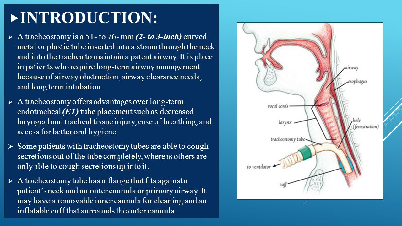  IMPLEMENTATION – cont'd  9.Tracheostomy with disposable inner cannula:  A.