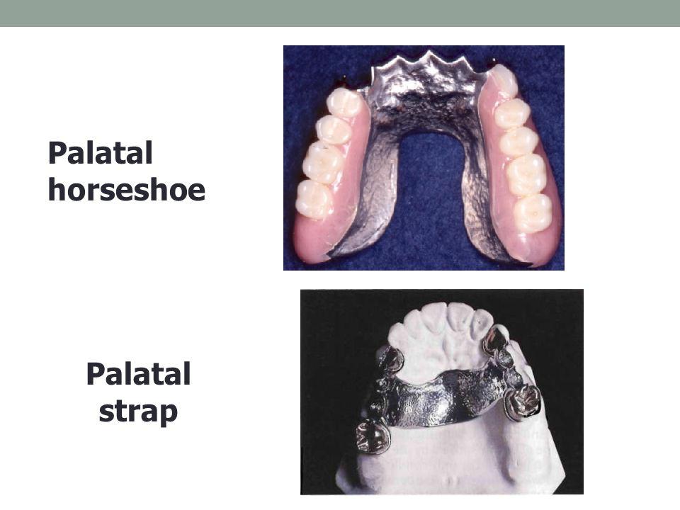 Palatal horseshoe Palatal strap