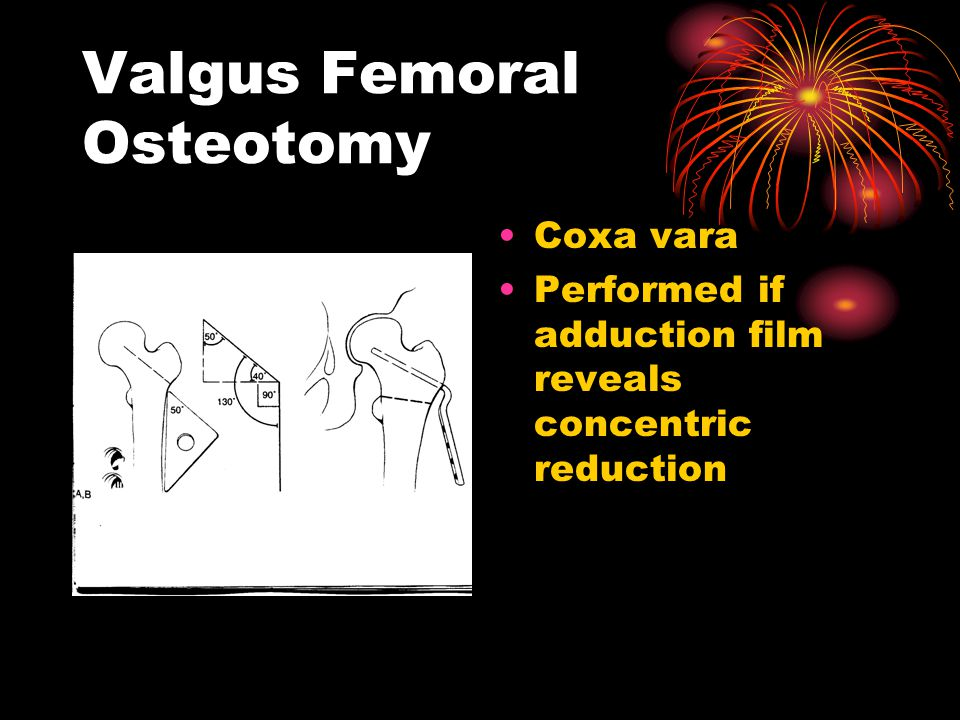 Valgus Femoral Osteotomy Coxa vara Performed if adduction film reveals concentric reduction