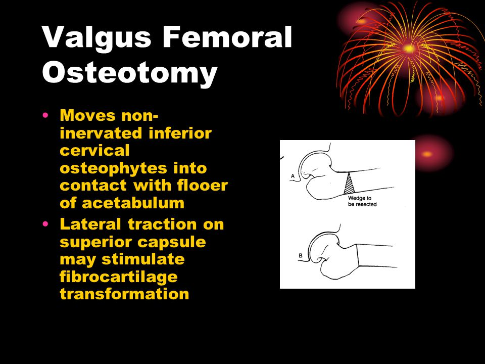 Valgus Femoral Osteotomy Moves non- inervated inferior cervical osteophytes into contact with flooer of acetabulum Lateral traction on superior capsule may stimulate fibrocartilage transformation