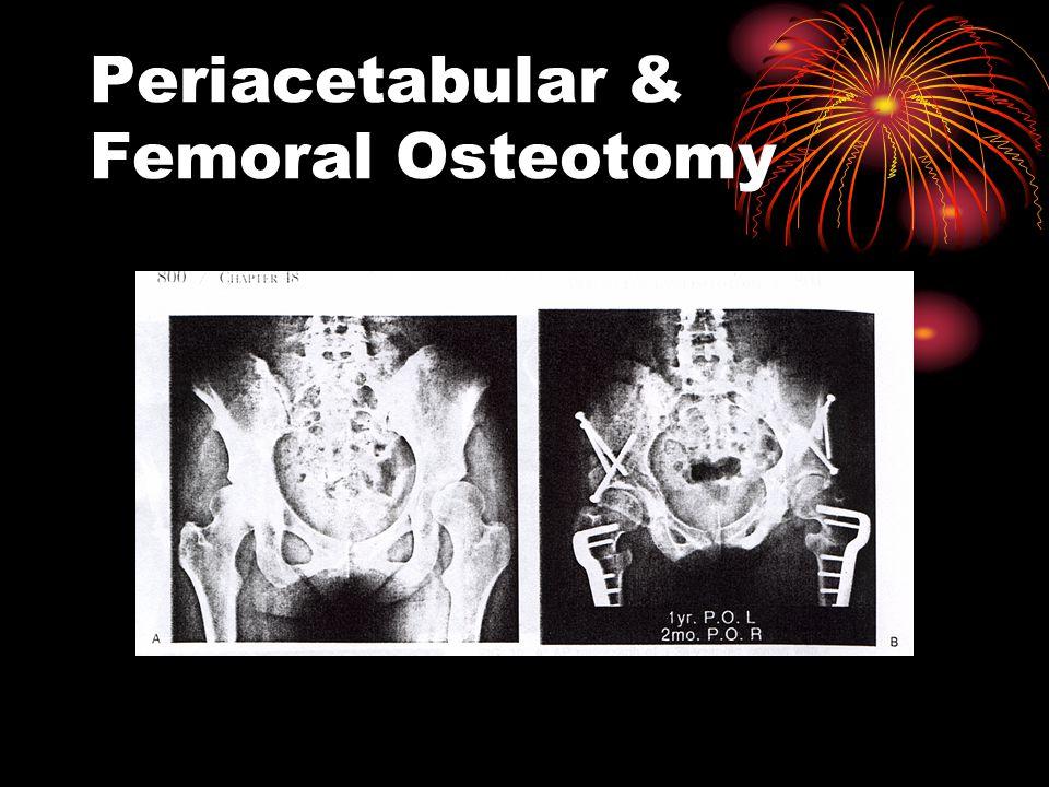Periacetabular & Femoral Osteotomy