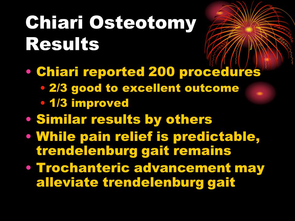 Chiari Osteotomy Results Chiari reported 200 procedures 2/3 good to excellent outcome 1/3 improved Similar results by others While pain relief is predictable, trendelenburg gait remains Trochanteric advancement may alleviate trendelenburg gait