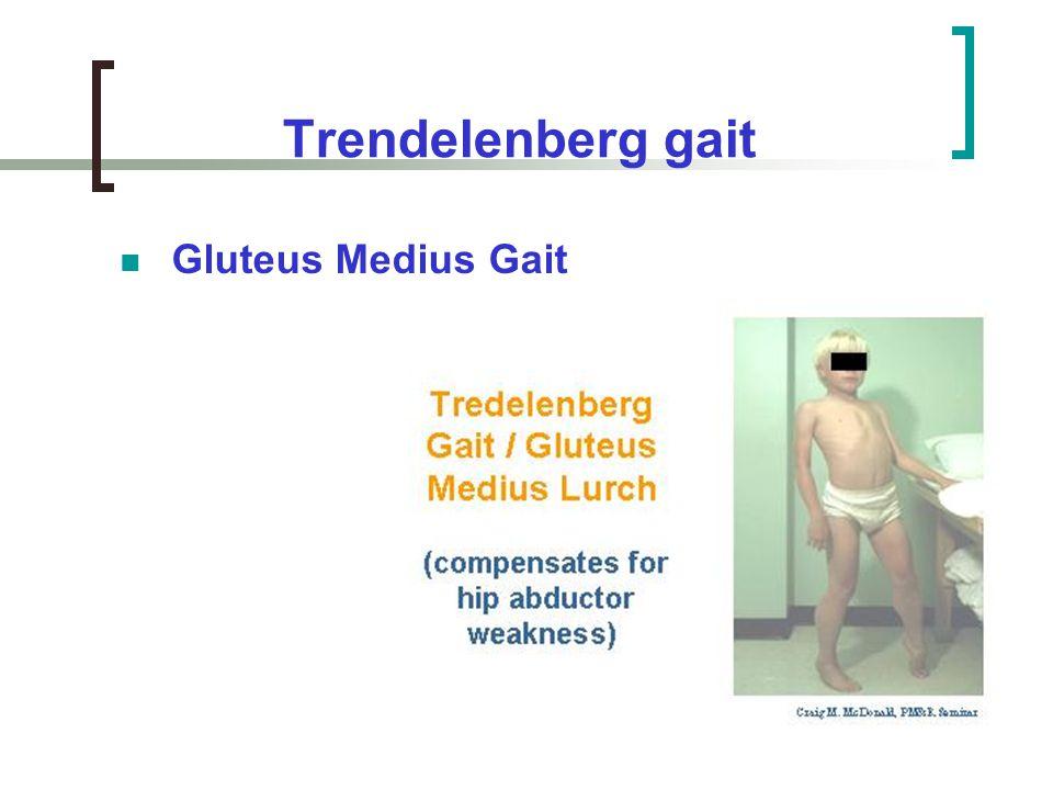 Trendelenberg gait Gluteus Medius Gait