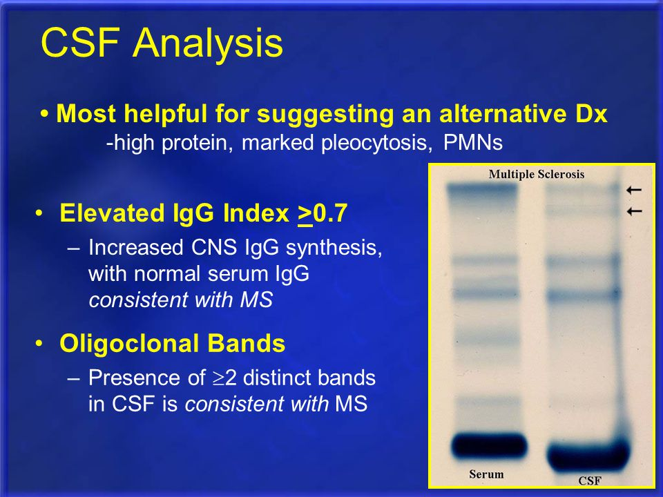 CSF Analysis Elevated IgG Index >0.7 –Increased CNS IgG synthesis, with normal serum IgG consistent with MS Oligoclonal Bands –Presence of  2 distinc
