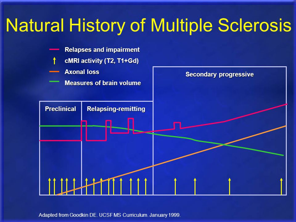 PreclinicalRelapsing-remitting Secondary progressive Adapted from Goodkin DE. UCSF MS Curriculum. January 1999. Natural History of Multiple Sclerosis