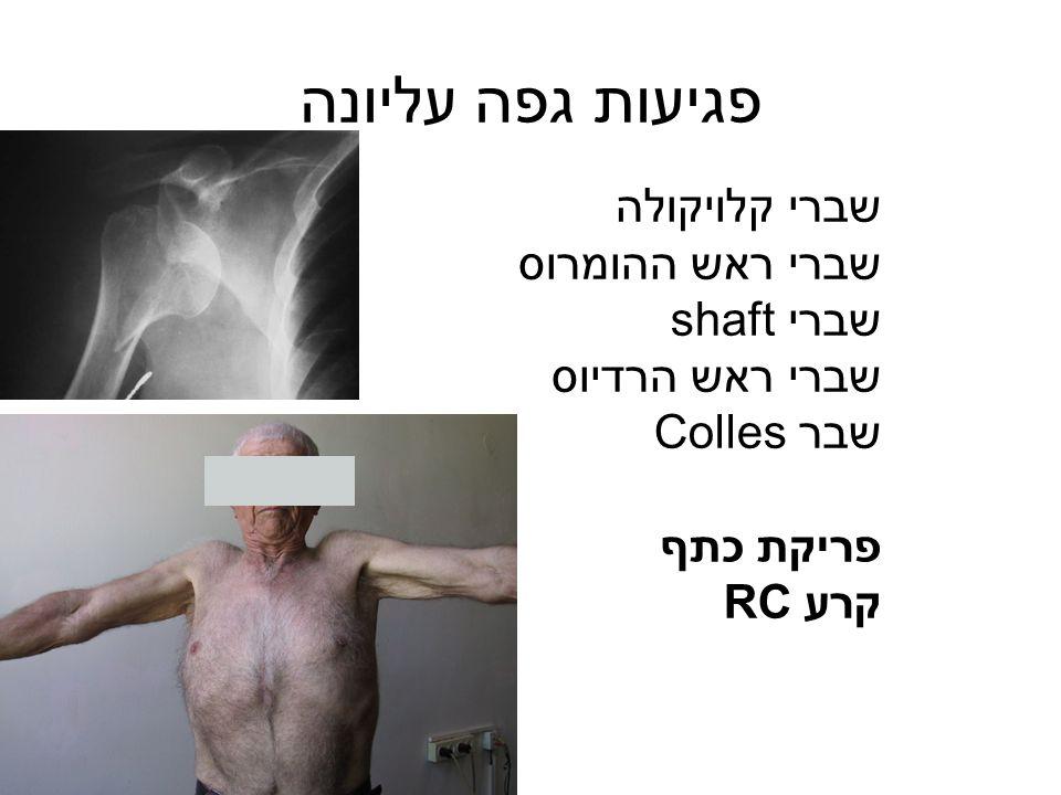 פגיעות גפה עליונה שברי קלויקולה שברי ראש ההומרוס שברי shaft שברי ראש הרדיוס שבר Colles פריקת כתף קרע RC
