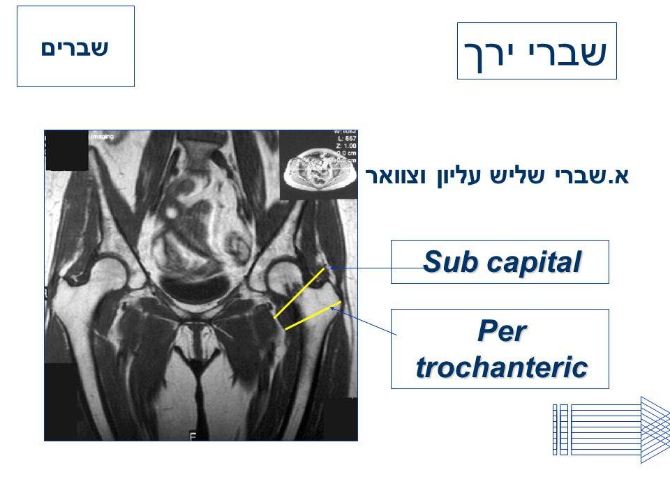 א.שברי שליש עליון וצוואר Sub capital Per trochanteric שברים שברי ירך