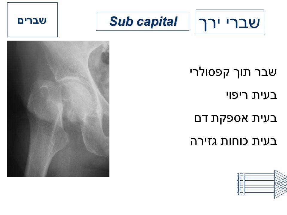 שברים שברי ירך Sub capital שבר תוך קפסולרי בעית ריפוי בעית אספקת דם בעית כוחות גזירה