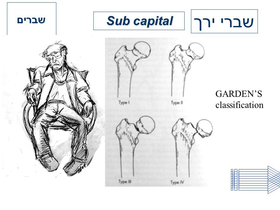 שברים שברי ירך Sub capital GARDEN'S classification