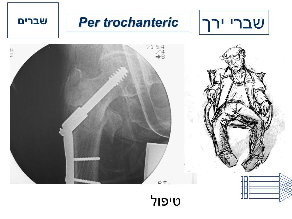 Per trochanteric שברים שברי ירך טיפול