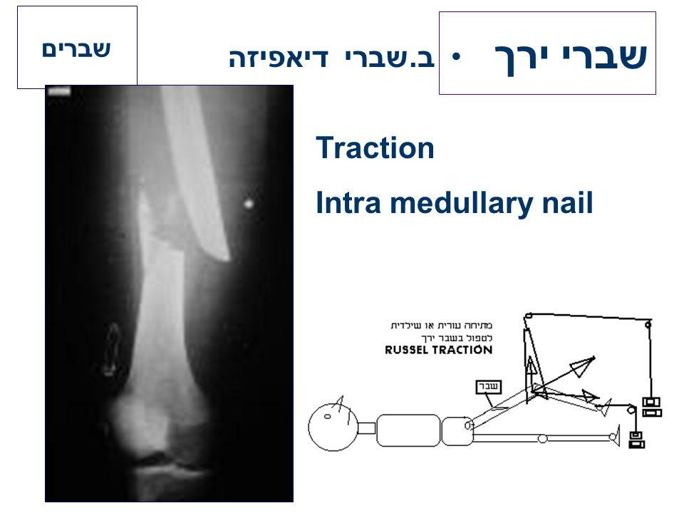 שברי ירך ב.שברי דיאפיזה שברים Traction Intra medullary nail