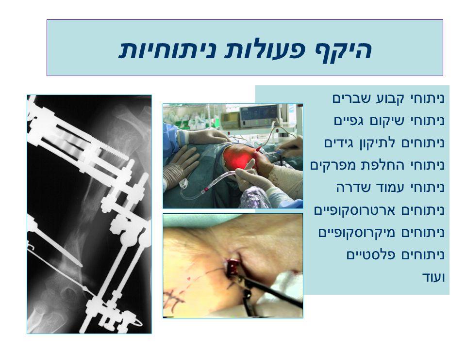 ניתוחי קבוע שברים ניתוחי שיקום גפיים ניתוחים לתיקון גידים ניתוחי החלפת מפרקים ניתוחי עמוד שדרה ניתוחים ארטרוסקופיים ניתוחים מיקרוסקופיים ניתוחים פלסטי