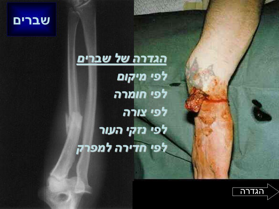 הגדרה של שברים לפי מיקום לפי חומרה לפי צורה לפי נזקי העור לפי חדירה למפרק שברים הגדרה
