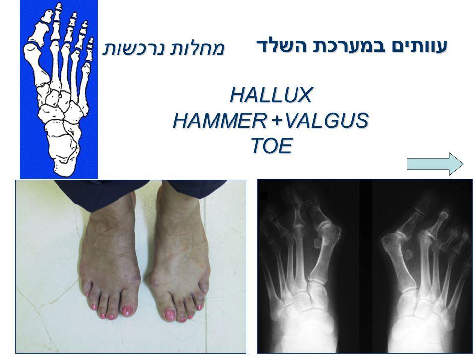 עוותים במערכת השלד מחלות נרכשות HALLUX VALGUS+HAMMER TOE