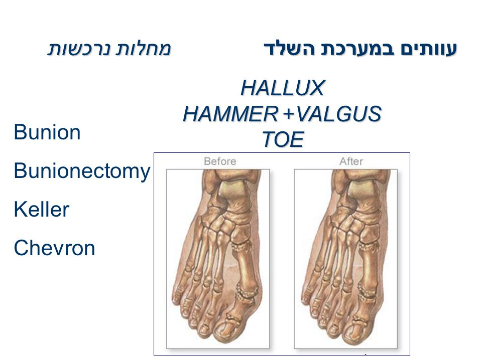 עוותים במערכת השלד מחלות נרכשות HALLUX VALGUS+HAMMER TOE Bunion Bunionectomy Keller Chevron