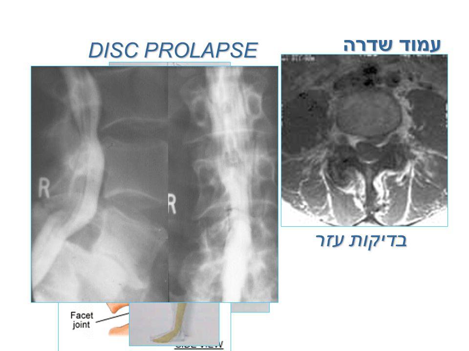 עמוד שדרה DISC PROLAPSE אנטומיה פתולוגיה תלונות המטופל בדיקה קלינית בדיקות עזר