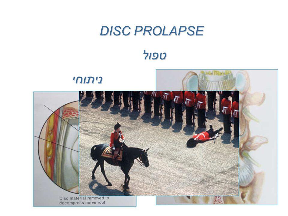 טפול DISC PROLAPSE שמרניניתוחי