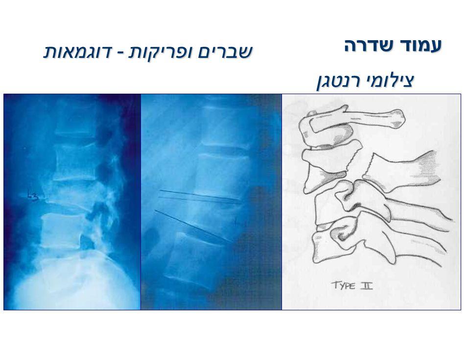 עמוד שדרה שברים ופריקות - דוגמאות צילומי רנטגן