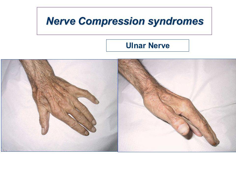 Nerve Compression syndromes Ulnar Nerve