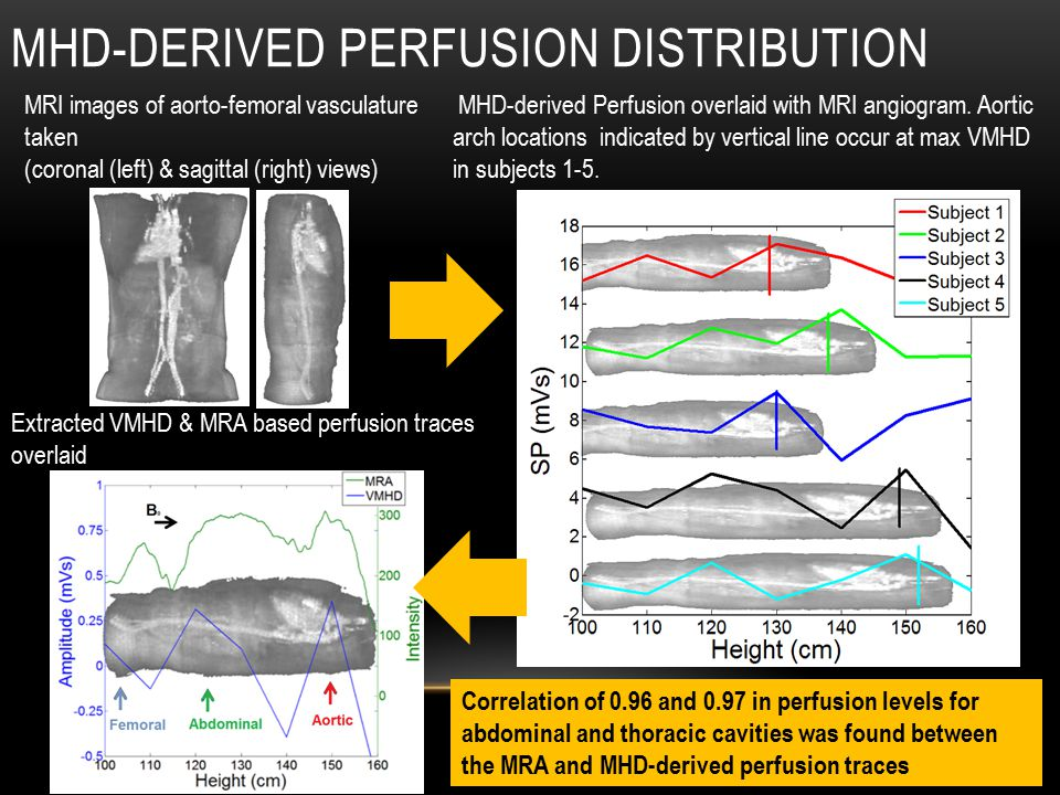 MHD-DERIVED PERFUSION DISTRIBUTION (Measured 2.80) MHD-derived Perfusion overlaid with MRI angiogram.