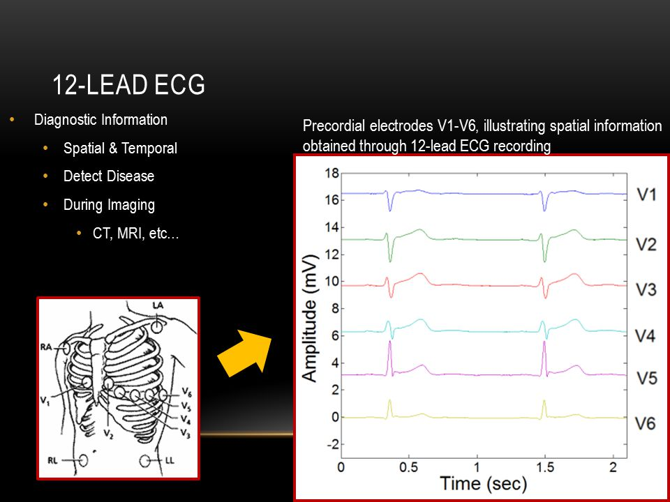 12-LEAD ECG Diagnostic Information Spatial & Temporal Detect Disease During Imaging CT, MRI, etc… Precordial electrodes V1-V6, illustrating spatial information obtained through 12-lead ECG recording
