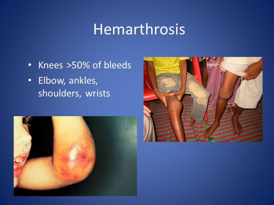 Hemarthrosis Knees >50% of bleeds Elbow, ankles, shoulders, wrists