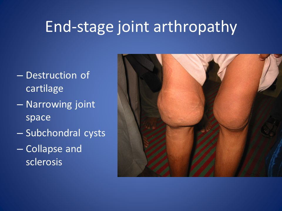 End-stage joint arthropathy – Destruction of cartilage – Narrowing joint space – Subchondral cysts – Collapse and sclerosis