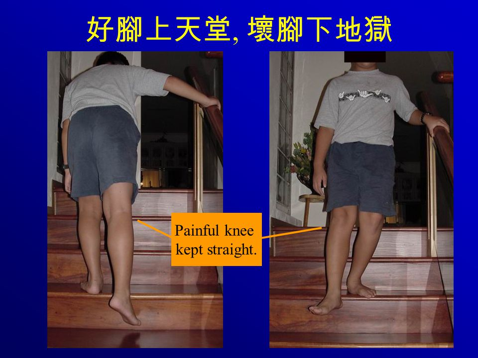 好腳上天堂, 壞腳下地獄 Painful knee kept straight.