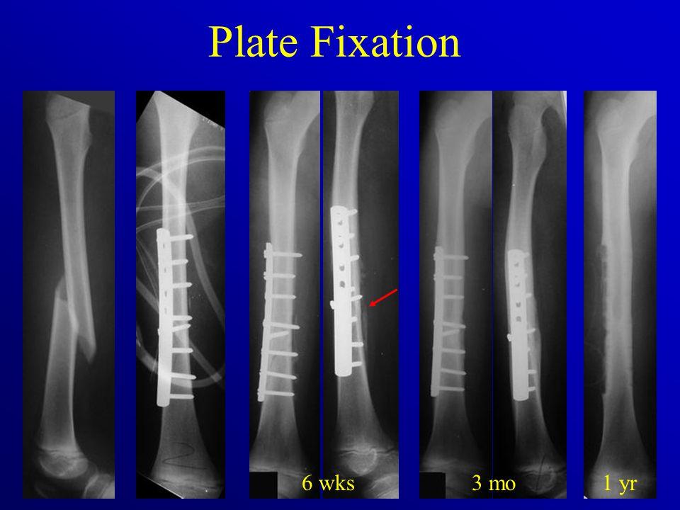 Plate Fixation 6 wks3 mo1 yr