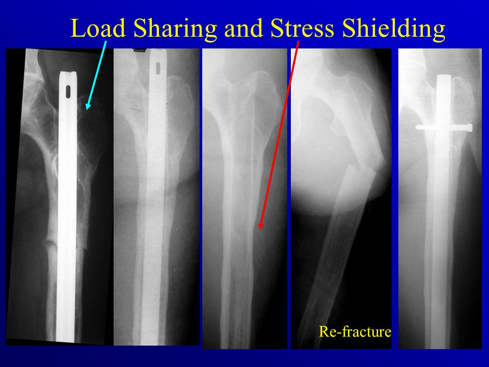 Load Sharing and Stress Shielding Re-fracture