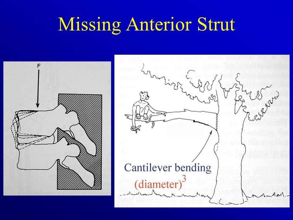 Missing Anterior Strut