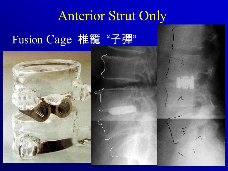 Fusion Cage 椎籠 子彈 Anterior Strut Only