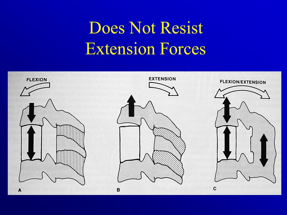 Does Not Resist Extension Forces