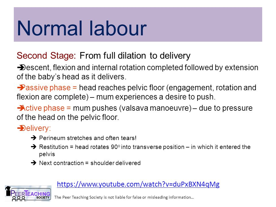 Second Stage: From full dilation to delivery  Descent, flexion and internal rotation completed followed by extension of the baby's head as it delivers.