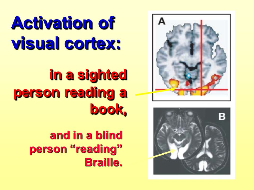 Activation of visual cortex: in a sighted person reading a book, in a sighted person reading a book, Activation of visual cortex: in a sighted person