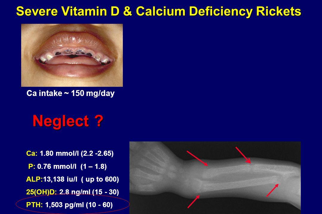 Severe Vitamin D & Calcium Deficiency Rickets Neglect ? Ca: 1.80 mmol/l (2.2 -2.65) P: 0.76 mmol/l (1 – 1.8) ALP:13,138 iu/l ( up to 600) 25(OH)D: 2.8