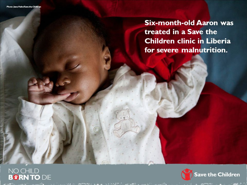 Photo: Jane Hahn/Save the Children Six-month-old Aaron was treated in a Save the Children clinic in Liberia for severe malnutrition.