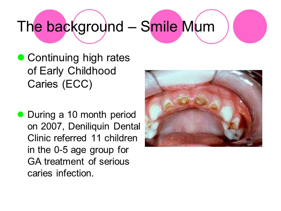 The background – Smile Mum Continuing high rates of Early Childhood Caries (ECC) During a 10 month period on 2007, Deniliquin Dental Clinic referred 11 children in the 0-5 age group for GA treatment of serious caries infection.