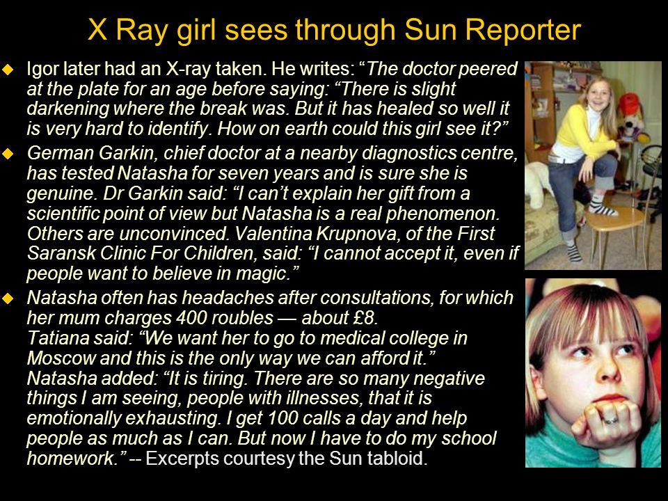 X Ray girl sees through Sun Reporter  Igor later had an X-ray taken.