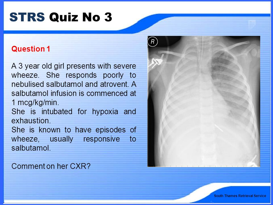 South Thames Retrieval Service STRS Quiz No 3 Question 1 A 3 year old girl presents with severe wheeze.