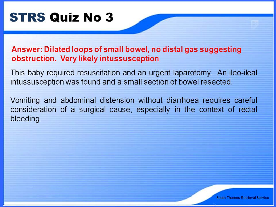 South Thames Retrieval Service STRS Quiz No 3 Answer: Dilated loops of small bowel, no distal gas suggesting obstruction.